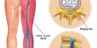 sciatica chiropractic rayleigh essex